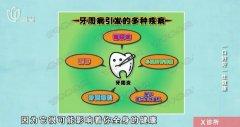 20170920X诊所视频和笔记:魏兵,牙齿美白误区,义齿,牙齿缺失