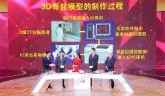 20171019养生堂视频和笔记:吴新宝,杨明辉,骨折,骨质疏松,3D打印