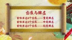 20171207养生堂视频和笔记:王焕禄,脾虚,齿痕,益脾饼,建中失笑汤