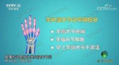 20171126龙8国际娱乐视频和笔记:周祖山,雷公藤,类风湿性关节炎