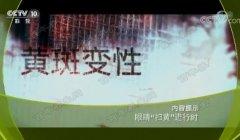 20180112健康之路视频和笔记:王康,黄斑变性,阿姆斯勒方格表