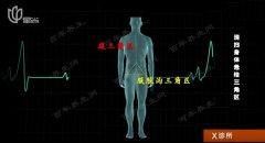 20180713X诊所视频和笔记:方泓,三角区,气血不畅,疝气,腹股沟