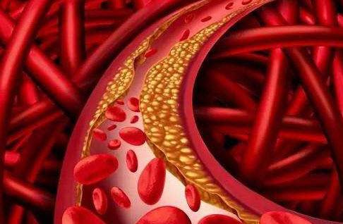 清理血管垃圾