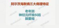20181211万家灯火视频和笔记:刘玄重,阿尔兹海默症