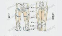 20190225万家灯火视频和笔不禁产生了疑惑记:蒋逸秋,髋关节损伤,O型腿,半月板