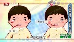 20191107我是大医生龙8娱乐app和笔记:孙敬青,中风,牛黄清心丸,薯蓣丸