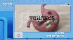 20191120健康之路视频和笔记:田雨,胃溃疡,幽门螺杆菌,胃镜,胃酸