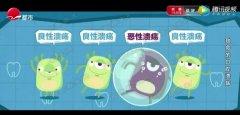 20191121X诊所视频和笔记:魏兵,口腔溃疡,口腔癌,免疫力,烦躁