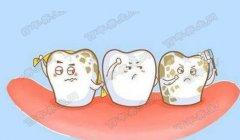 20191209健康之路万博manbetx苹果APP和笔记:王晓燕,牙髓炎,龋齿,牙菌斑,虫牙