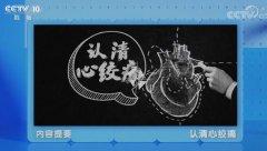 20200111健康之路视频和笔记:曾玉杰,心绞痛,冠心病,猝死,胆固醇