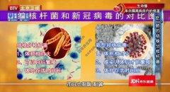 20200326我是大医生龙8娱乐和笔记:赵雁林,肺结核,结核分枝杆菌