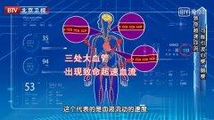 20200528我是大医生视频和笔记:刘鹏,脑梗,心梗,链球菌,粥样硬化