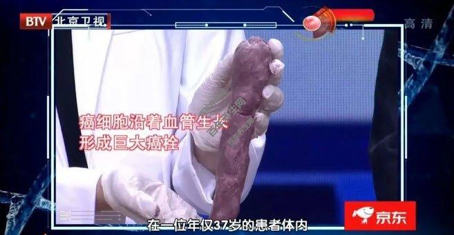寻找肾癌的蛛丝马迹