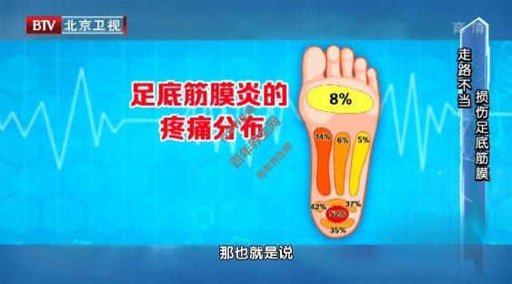 足底筋膜炎疼痛分布