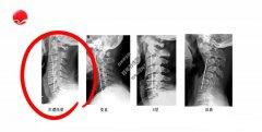 20201104X诊所视频和笔记:陈华江,生理曲度,头晕,颈椎病,小燕飞