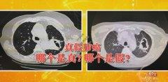 20201126养生堂视频和笔记:叶寰,操敏,气胸,肺癌,糖尿病,肺脓肿