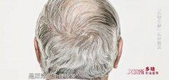 20210125X诊所视频和笔记:郑志忠,白发,白癜风,毛囊炎,溢脂性皮炎