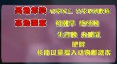 20210419X诊所视频和笔记:邵志敏,乳腺癌,钼靶检查,乳房自检