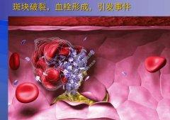 20210826X诊所视频和笔记:冯其茂,胆固醇,甘油三酯,磷脂,脂肪酸