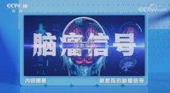 20210907健康之路视频和笔记:万经海,脑瘤,健忘,耳鸣,内分泌失调